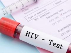 xet nghiem hiv combo ngay 28 va 45 deu am tinh da an toan