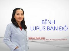 benh lupus ban do la gi va nen song chung voi benh tu mien nhu the nao