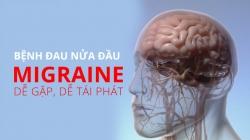 benh dau nua dau migraine de gap de tai phat dieu tri the nao