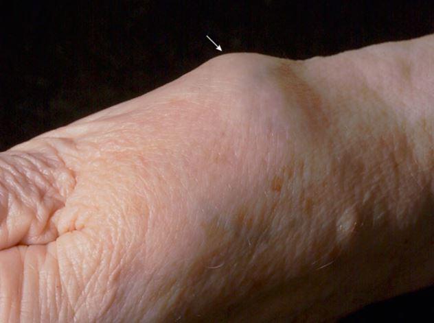 Tổn thương khớp bàn cổ tay ngón 1 (CMC-1) trong thoái hóa khớp
