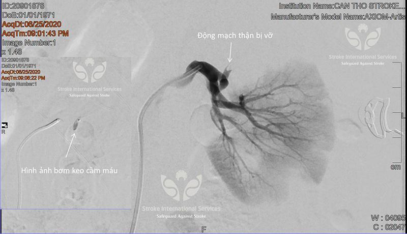 alobacsi can thiệp tắc mạch cho bệnh nhân vỡ tạng