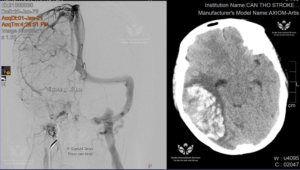 alobacsi huyết khối tĩnh mạch não