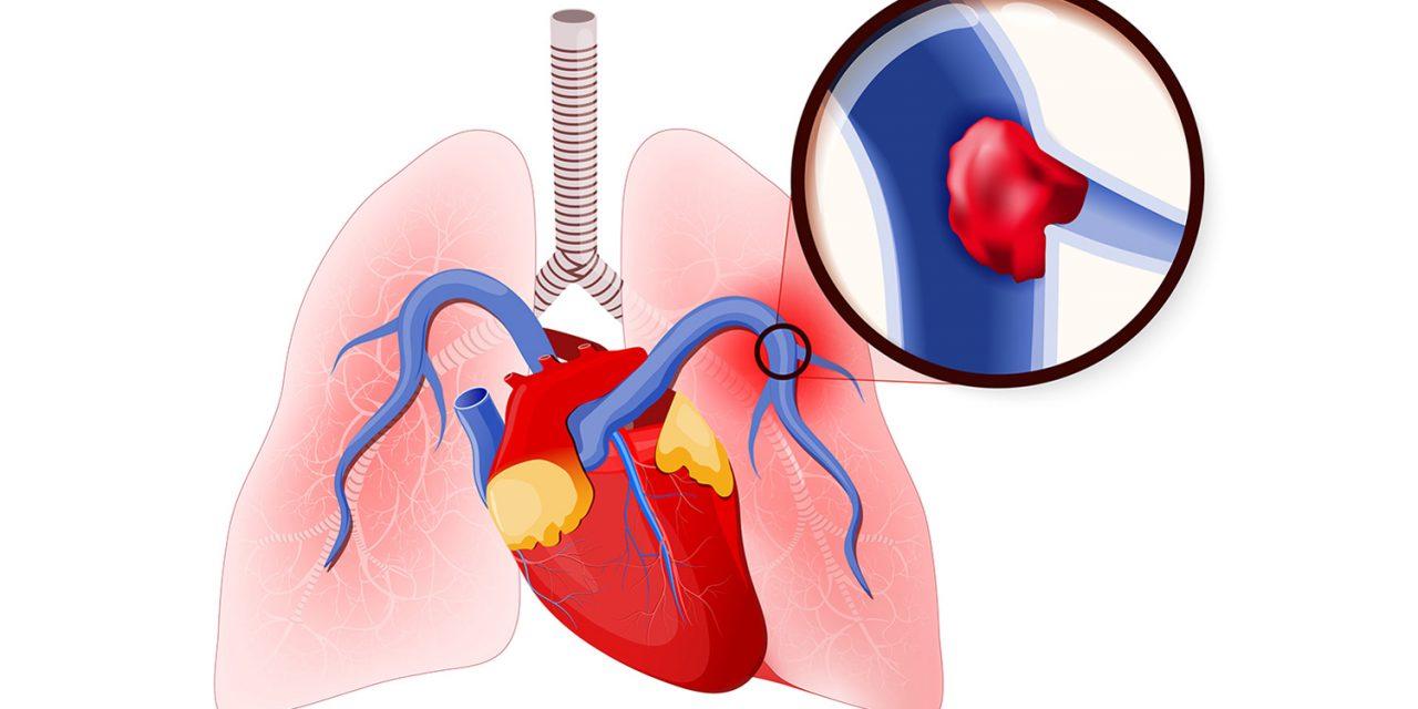 Cục máu đông gây thuyên tắc phổi (PE)