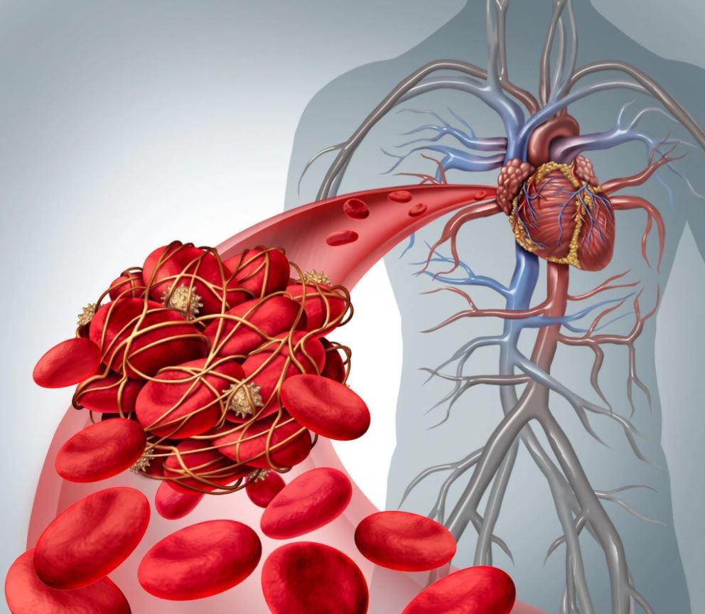 Cục máu đông trong tim