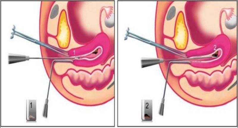 Sinh thiết nội mạc tử cung