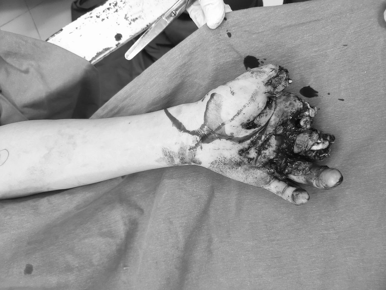 Thiếu niên 14 tuổi cụt 3 ngón bàn tay trái do nổ pin quạt tích điện
